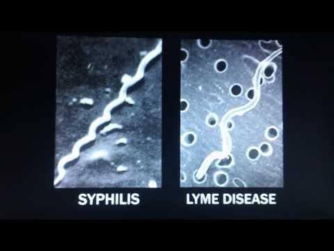 Under Our Skin - Dr. McDonald Clip, Lyme Disease, Alzhemer's, MS,