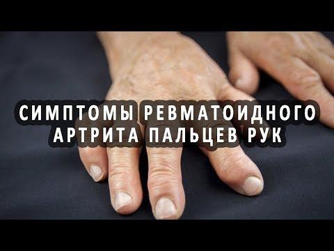Первые проявления ревматоидного артрита пальцев рук