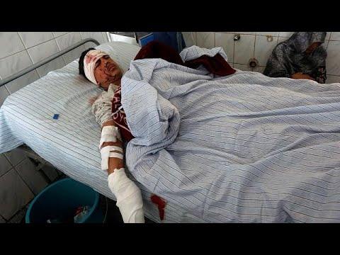 Carnificina num ataque suicida contra mesquita xiita de Cabul