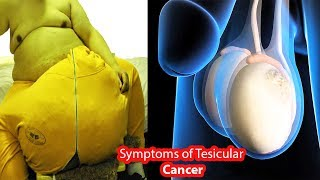 Why Testicles are Getting Pain?- Symptoms of Testicles Cancer