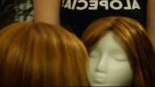 Alopecia Activism: Jenni Konopski