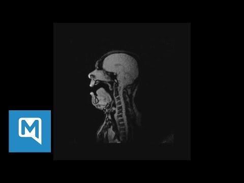 """Gruseliges Video: MRT-Aufnahmen von Michael Volle bei """"Lied an den Abendstern"""""""