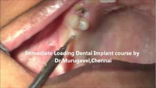 Flapless KOS Implant Training Video(, 2013-03-25T11:07:07.000Z)