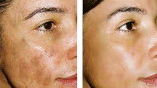 Crema Para Quitar Manchas Oscuras: HIDROQUINONA / Hydroquinone For Skin Lightening thumbnail