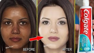 Top 5 Amazing Toothpaste Beauty Hacks । How to remove blackh…