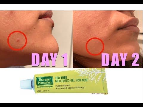 hqdefault - Tea Tree Blemish Gel Acne