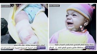 شاهد: رضيعة سورية بترت قدمها وفقدت والدتها وإخوتها