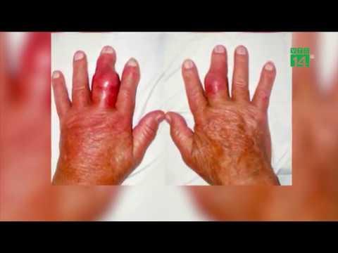 VTC14   Vì sao bệnh gout ngày càng trẻ hóa và gia tăng ở Việt Nam?