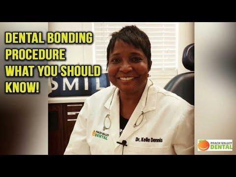 dental-bonding-atlanta-|-teeth-bonding
