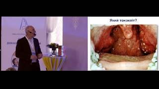 видео Бактериальный тонзиллит - лечение и симптомы проявления возбудителя (+фото)