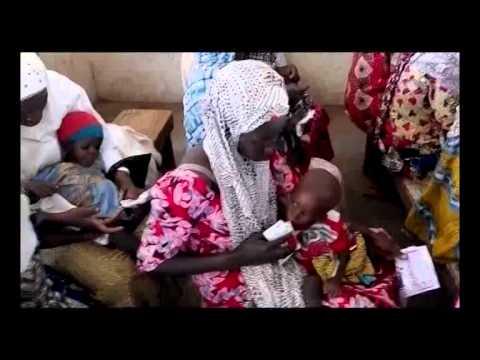 Malnutrition in Nigeria According to United Nations Children's Fund (UNICEF)