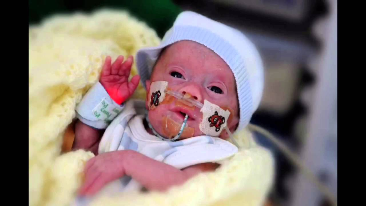 NAS NEONATAL ABSTINENCE SYNDROME - YouTube