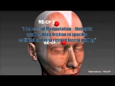 Fascial Manipulation® по Луиджи Стекко, что это? (англ).