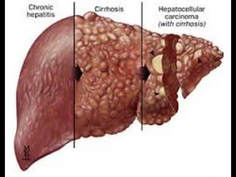 HÍGADO AFECCIONES (HEPATOPATIAS) - YouTube