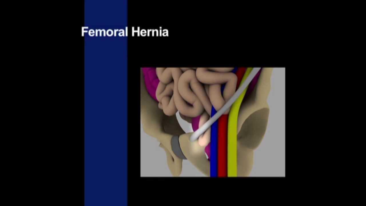 Examination of the ...Male Genitalia - Clinical Skills Series - YouTube