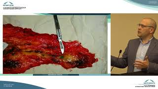 биопсия сигнальных лимфоузлов у больных ранними стадиями рака молочной железы