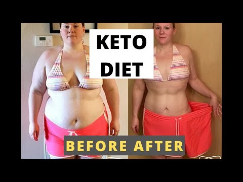 keto-diet-before-after---keto-diet-transformation-compilation