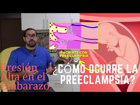 Preeclampsia| Presión Alta en el Embarazo | Dr Ego