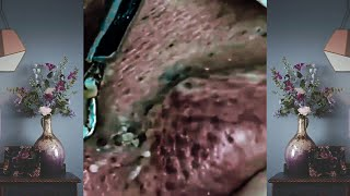 Best full Blackhead Removal Vevo.dr |dr Acne Treatment | acne by Vevo.dr Ep 143