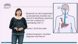 Symptomer på Akromegali.