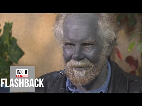 McCabe - Why Did This Guys Skin Turn Blue?