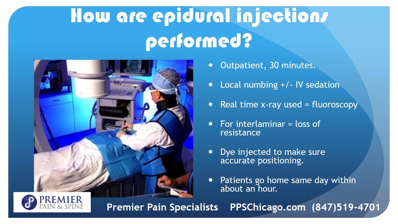Iv sedation for epidural steroid injection steroids for mass gain