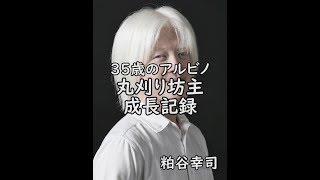35歳アルビノの日本人が丸刈り坊主にしてから白い髪が伸びてくる成長記録