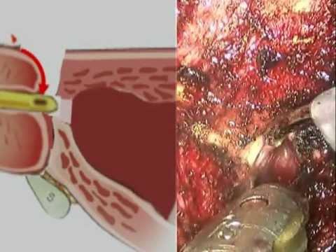 Robotic Radical Prostatectomy Step By Step Bladder Neck Incision
