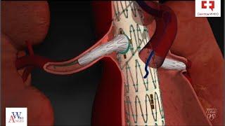 Эндопротезирование аневризмы аорты фенестрированным и многобраншевым стент графтом(, 2016-08-29T16:06:26.000Z)