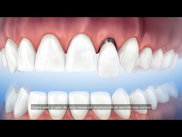Implantología oral y periodoncia en CCMdental