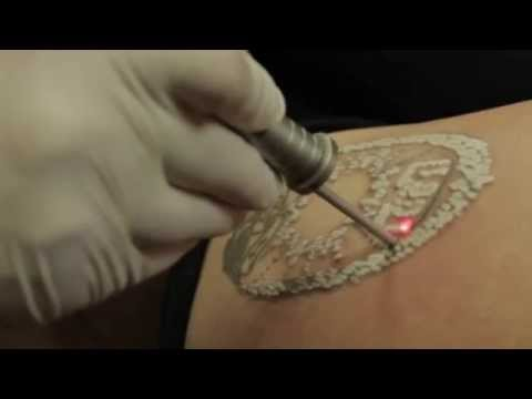 Best Laser Tattoo Removal Treatments NJ | Tattoo Removal Options l ...