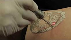 Laser Tattoo Removal NJ