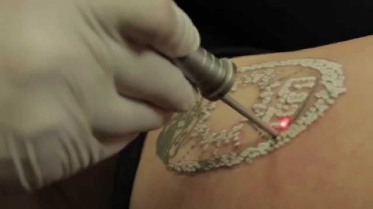 laser tattoo removal nj youtube