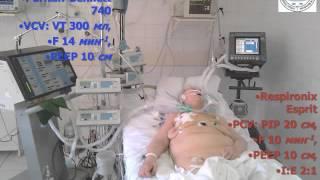 Вентиляционно-перфузионные отношения (кИВЛ14дек) Лебединский К.М.(1)