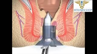 Смотреть видео лечение геморроя операция