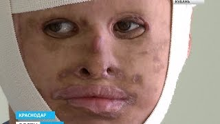 Кубанские врачи провели уникальную операцию по пересадке кожи