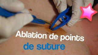 Ablation de points de suture | Septembre 2016