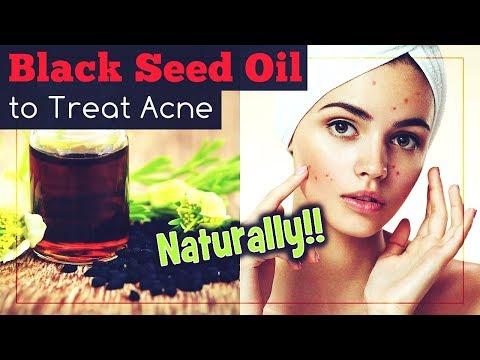 hqdefault - Black Currant Oil Capsules Acne