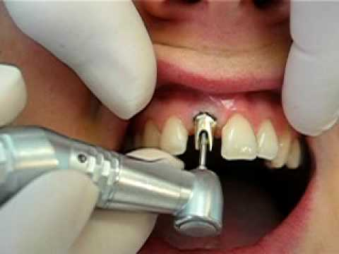 implant dentaire cassé