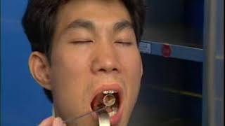 卫生部医学视听教材—耳鼻咽喉科—EB004 鼻咽癌的诊断与治疗