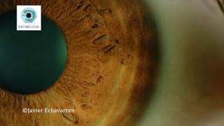 Vidéo de l'évolution d'une Tache dans le ZT du poumon gauche