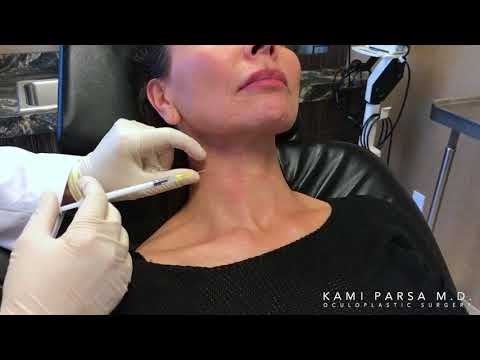 Treating Platysmal Banding With Botox Injections - Kami Parsa, M.D. in Beverly Hill