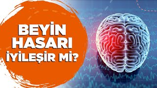 Beyin Hasarı İyileşir mi?