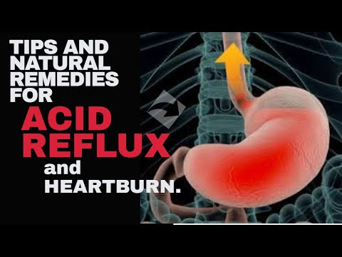 Tips And Natural Remedies For Acid Reflux and Heartburn.