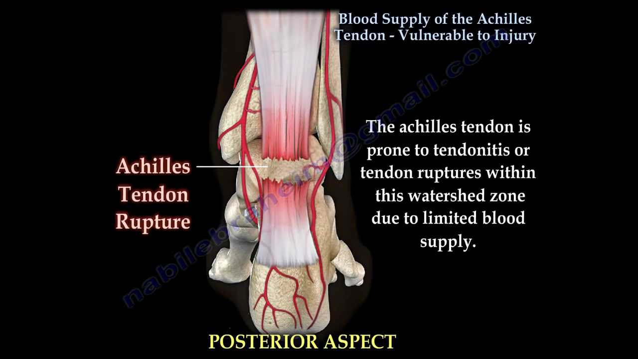 Achilles Tendon Rupture Vulnerablity To Injury Everything You
