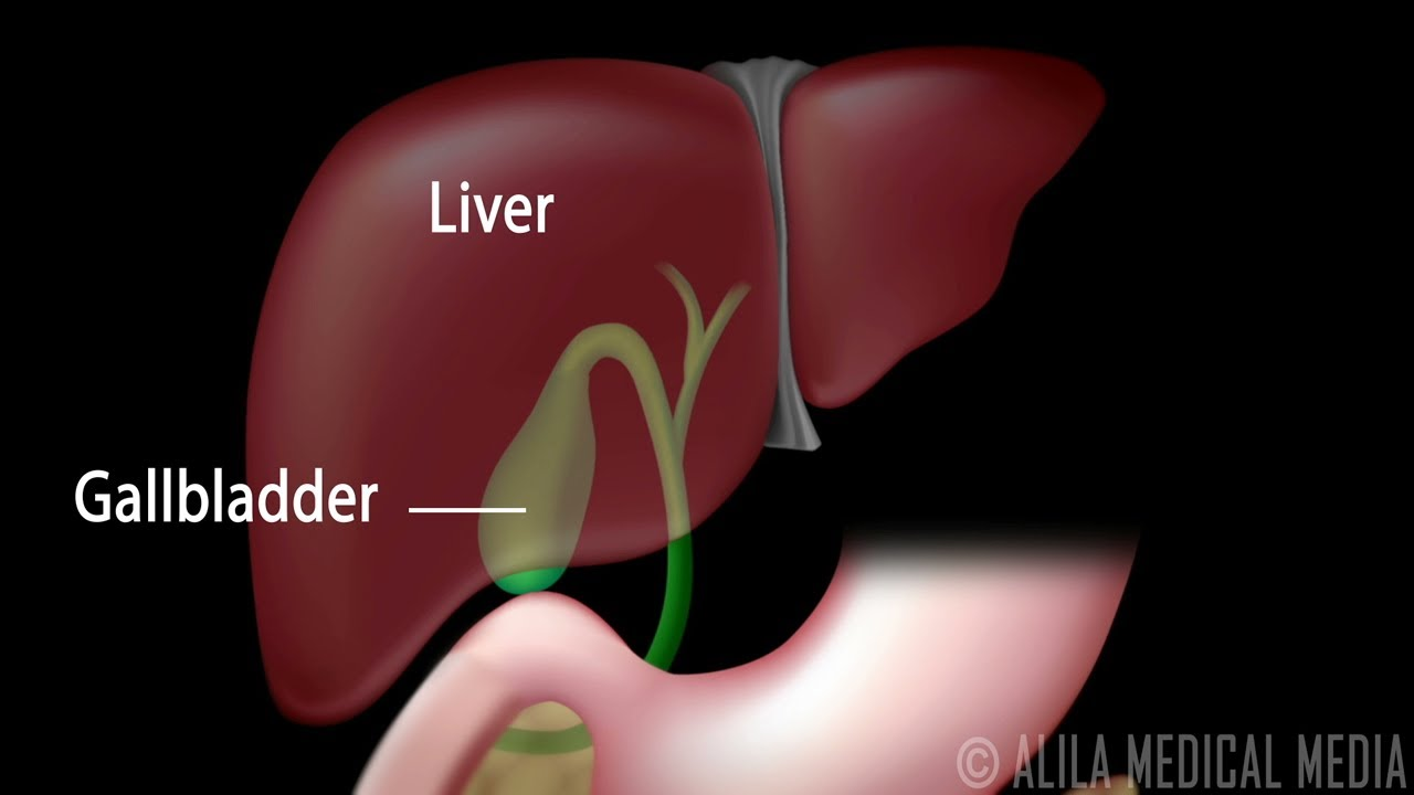 gallstones and surgical removal of gallbladder cholecystectomy animation youtube [ 1280 x 720 Pixel ]
