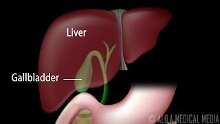 Gallstones and Surgical Removal of Gallbladder (Cholecystectomy) Animation.