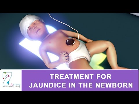 TREATMENT FOR JAUNDICE IN THE NEWBORN
