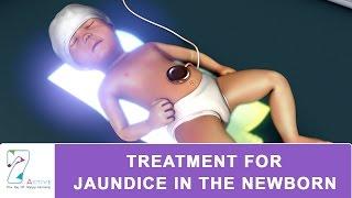 TREATMENT FOR JAUNDICE IN THE NEWBORN