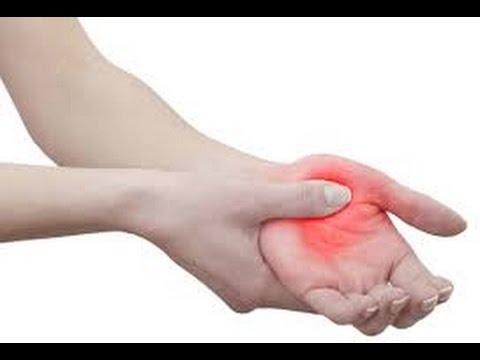 Neuropatia Käsissä